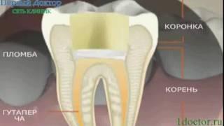 видео Болит зуб под коронкой, нужно ли снимать коронку?