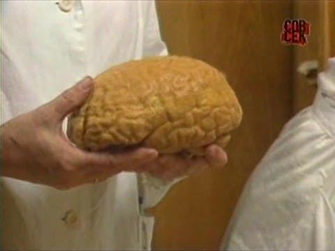 Ленин готовится к воскрешению / Мозг Ленина