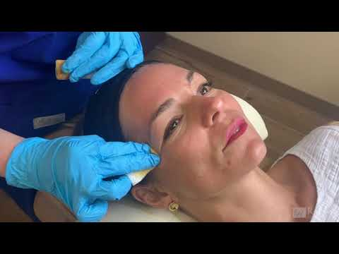 Rousso Facial Plastic Surgery - Chemical Peels