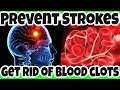 NATURAL WAYS to Get Rid of BLOOD CLOTS to Prevent Strokes and Heart Attack - Dissolve BLOOD CLOTS