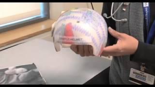 WOW!! Bantal Kepala Bayi Anti Peyang | Olus Pillow | Bantal Ajaib.