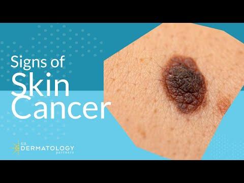 Skin Cancer Screening   Symptoms, Types & Warning Signs