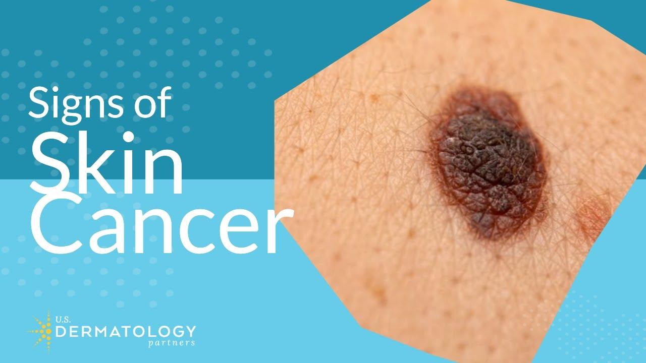 Skin Cancer Screening Symptoms Types Warning Signs Youtube