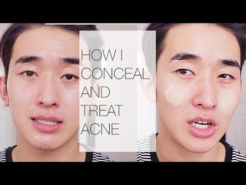 My Full Coverage routine | Acne Prone Skin! | Ivan Lam