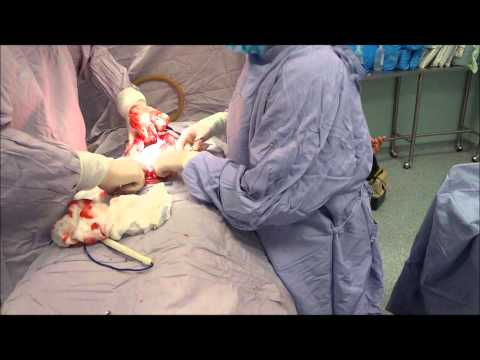 Surgery for ovarian tumor. Complete video.