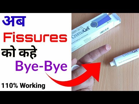 Diltiazem Gel 2% | Crema Gel Review | Cure Fissures Permanently