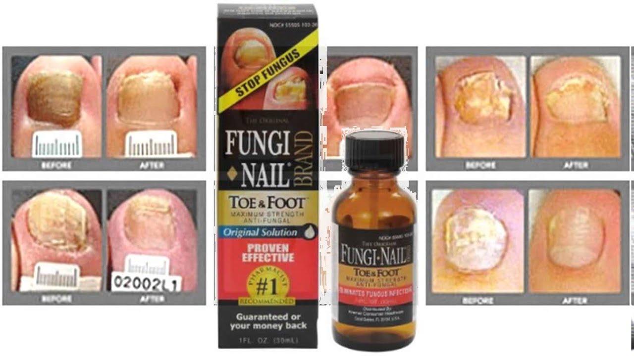 fungi nail - YouTube