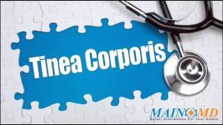 Tinea Corporis ¦ Treatment and Symptoms