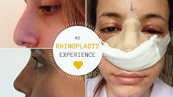 I GOT A NOSE JOB | THE BEST SURGEON  | Rhinoplasty Experience