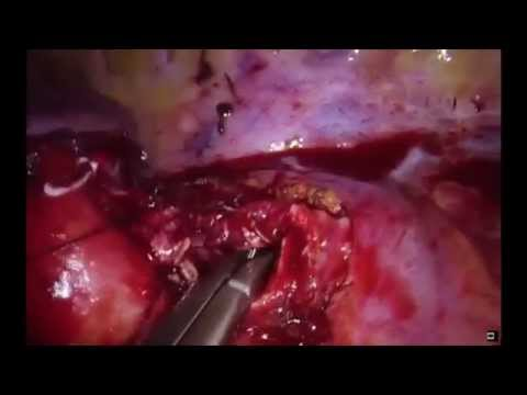 Uniportal thoracoscopic sleeve lobectomy after induction therapy