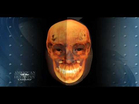 Dental Implants Savannah GA | Brad Durham, DMD