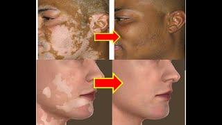 Cara menyembuhkan vitiligo dengan cepat. Vitiligo ialah munculnya bercak putih pada tubuh atau bagia.