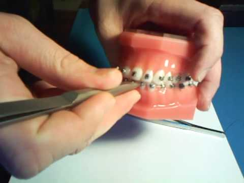 Its easy to open and close damon brackets youtube solutioingenieria Images