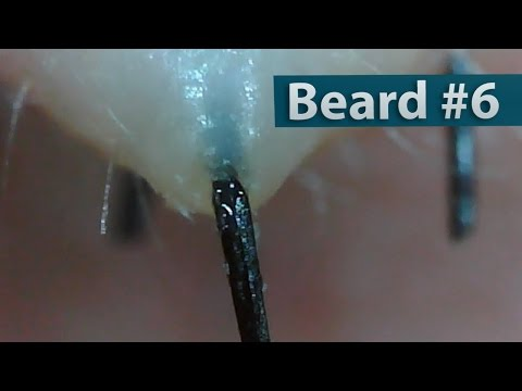 #06 Pull Out Beard, Blackhead and Hair Root(Root Sheath) Close up