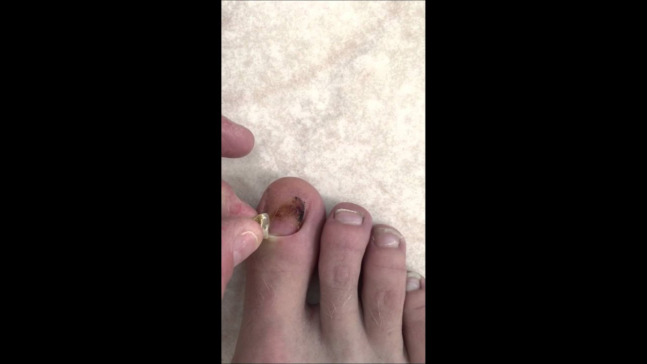 Big toenail falling off - YouTube