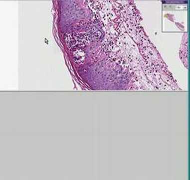 Histopathology Skin--Herpes - YouTube