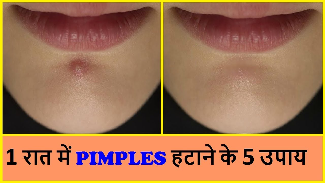 प म पल हट न क 5 उप य How To Remove Pimples