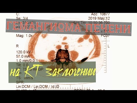 ГЕМАНГИОМА ПЕЧЕНИ на КТ печени в заключении рентгенолога к.м.н.  Котова М.А.  Кальцинаты в почках.