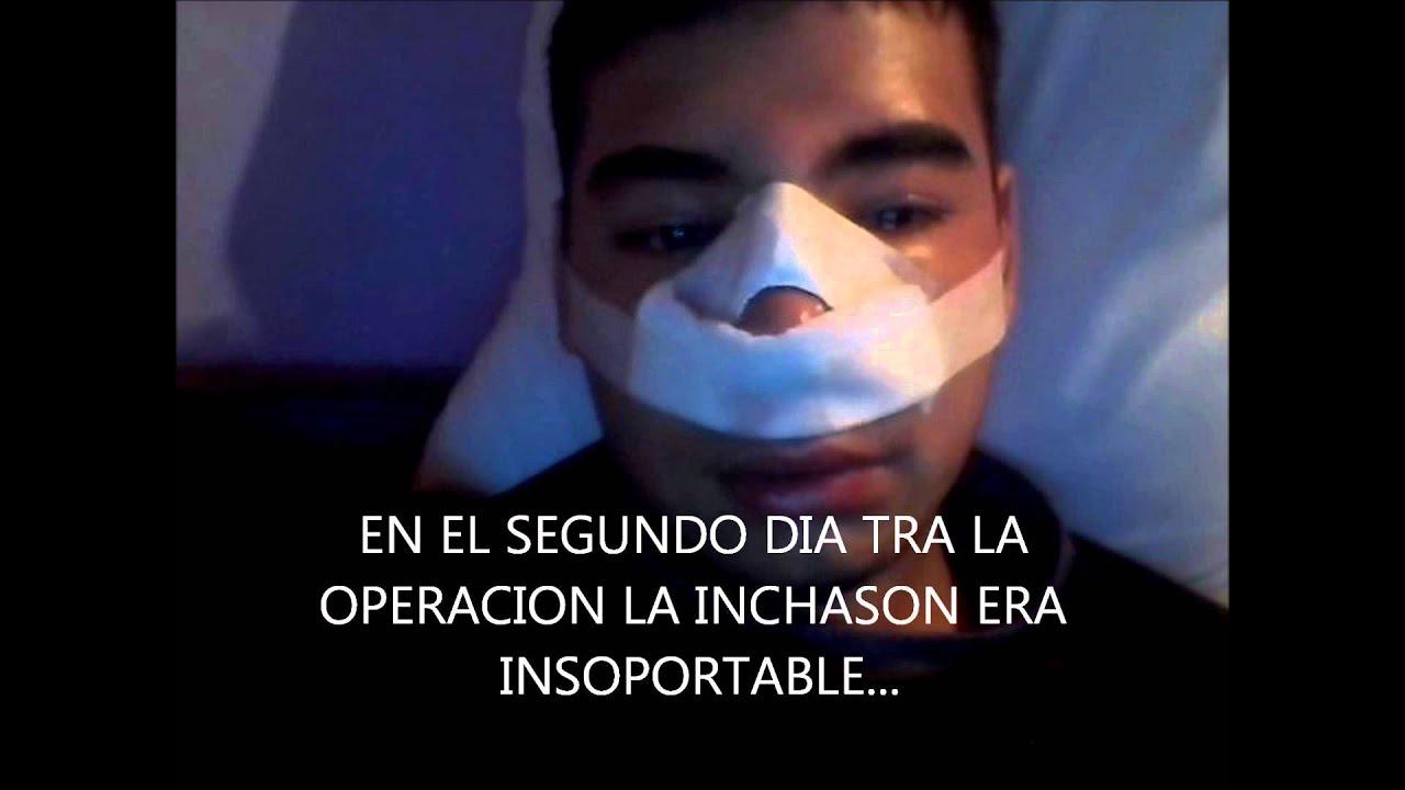video de operacion de nariz por tabique desviado