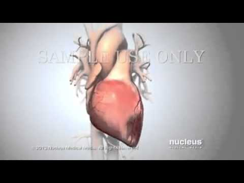 Understanding Cardiac diseases