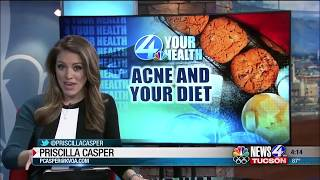 4 Your Health: New study shows eating habits may attribute to acne