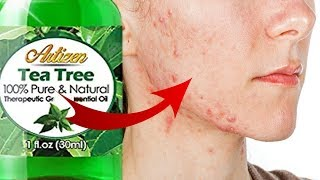 How To Cure Fungal Acne Naturally | FAST CHEAP CURE | MALASEZZIA FOLLICULITIS