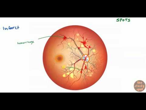 Diabetic Retinopathy for USMLE Step 1 and USMLE Step 2