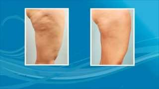 Cellulaze Treatment Detail - Lipodoc Thumbnail