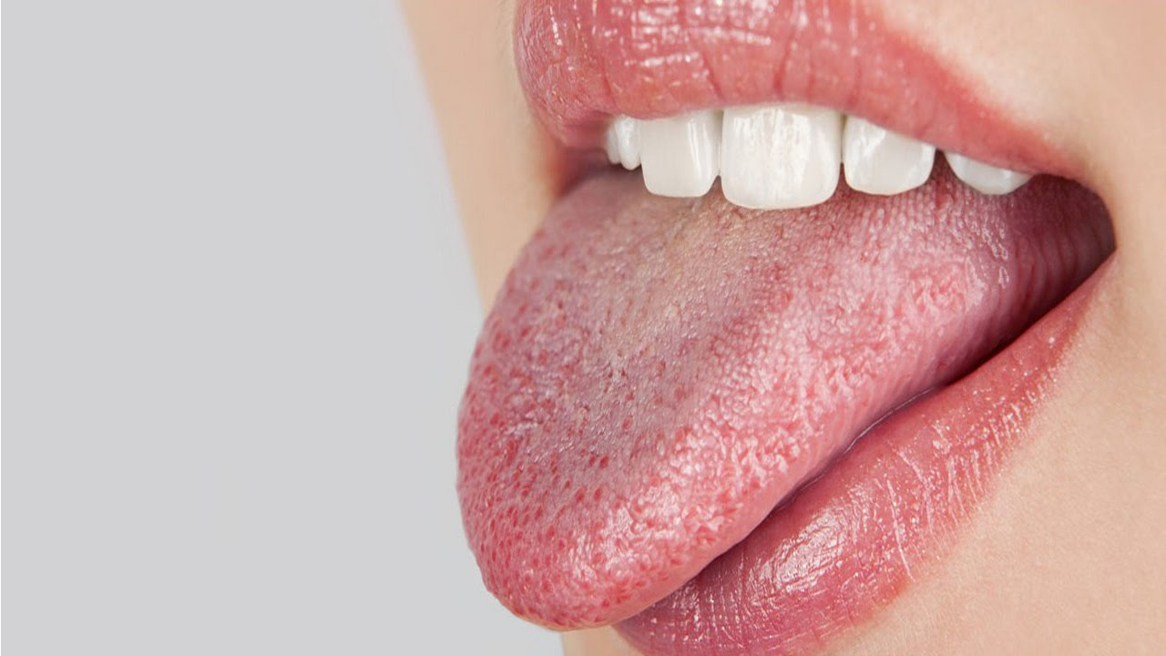 Thrush (Oral Candidiasis) in Adults: Condition, Treatments ...