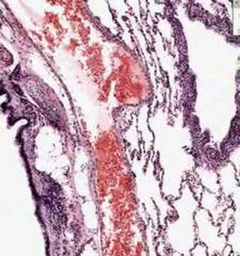 Shotgun Histology Lung