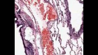 Shotgun Histology Lung