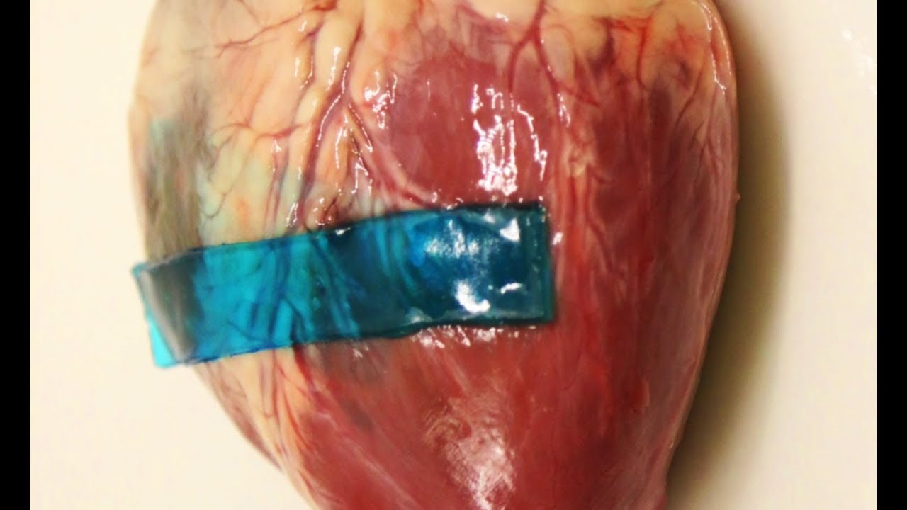 New super strong adhesive can speed up wound healing