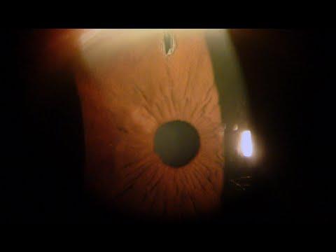 Iridotomia Laser Per Glaucoma Studi Oculistici Abbondanza Youtube