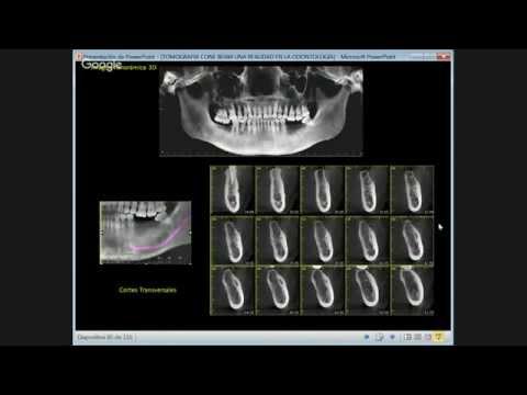 Tomograf 237 A Cone Beam Una Realidad En La Odontolog 237 A Youtube