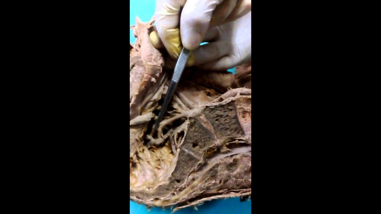 Ramas de arteria iliaca interna - YouTube