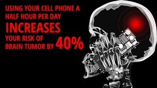 Do Cell Phones Cause Brain Tumors? Tips To Avoid Cell Phone Radiation