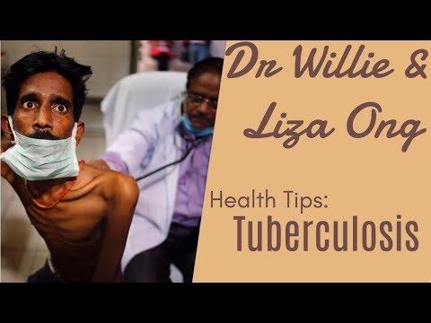 Tuberculosis (TB), Ubo, Impeksyon sa Baga – ni Dr Jose Hesron Morfe #1