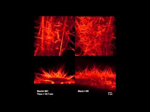 Bi Chang Chen - Alon Greenbaum - Orla Hanrahan - Light Sheet Microscopy for Tissue Clearing ...