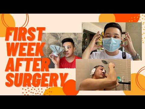 TIPS FOR FAST RECOVERY + CAST REMOVAL   MY RHINOPLASTY JOURNEY   PART 2