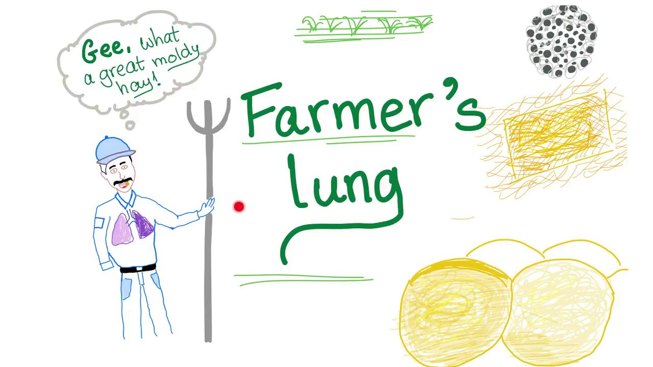 How to Diagnose Farmers Lung