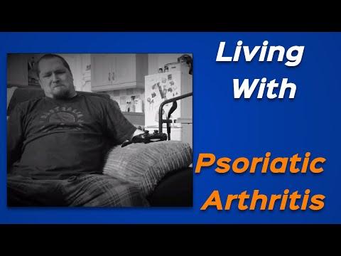Psoriatic Arthritis Symptoms & Psoriatic Arthritis Treatment