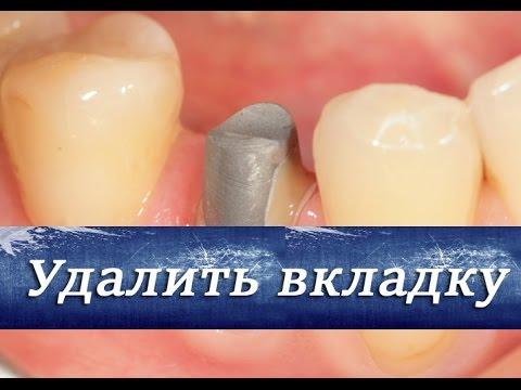 Как удалить вкладку из зуба. Ортопедическая стоматология.