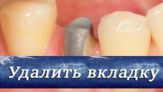 Как удалить вкладку из зуба. Ортопедическая стоматология.(В этом видео мы вам расскажем как удалить вкладку из зуба, что бы не травмировать корень, зуб и ткани. Как..., 2015-05-20T21:08:35.000Z)