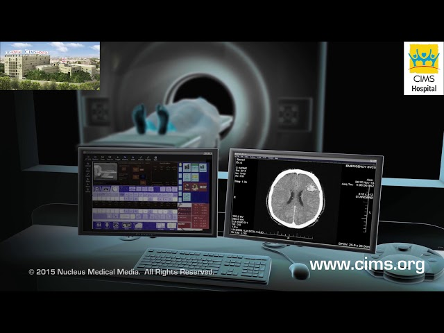 CT SCAN (Gujarati) - CIMS Hospital