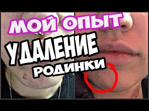 УДАЛЕНИЕ РОДИНКИ НА ЛИЦЕ ЛАЗЕРОМ // МОЙ ОПЫТ