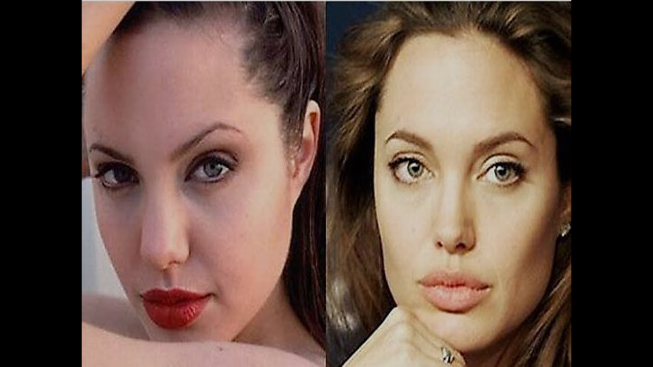 Before And After Nose Jobs With Angelina Jolie