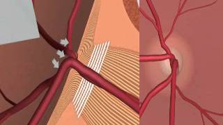 Glaucoma and Iridotomy treatment