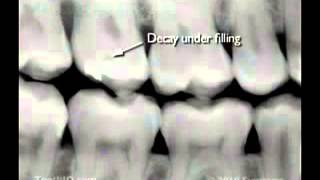 Gambar cover radiografias dentales tipo Bitewing X-rays dental advance clinica odontologica aimone diego