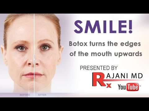 Botox facial injection sites chin opinion