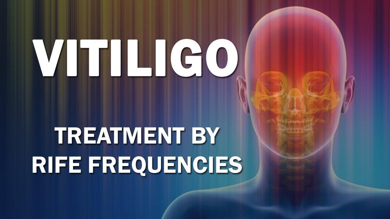 helmint fertőzések megelőzésére szolgáló gyógyszerek emberi lapos férgek